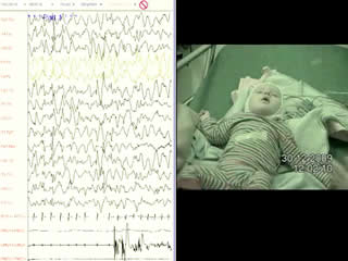 Angelman syndrome and pseudo-hypsarrhythmia: a diagnostic pitfall
