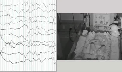 Pointed rhythmic theta waves: a unique EEG pattern in KCNQ2-related neonatal epileptic encephalopathy