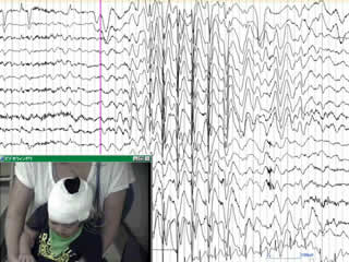 Pharmacoresistant epileptic eyelid twitching in a child with a mutation in SYNGAP1