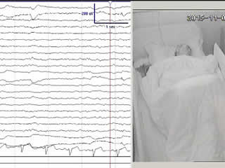 Sleep-related hypermotor epilepsy activated by rapid eye movement sleep