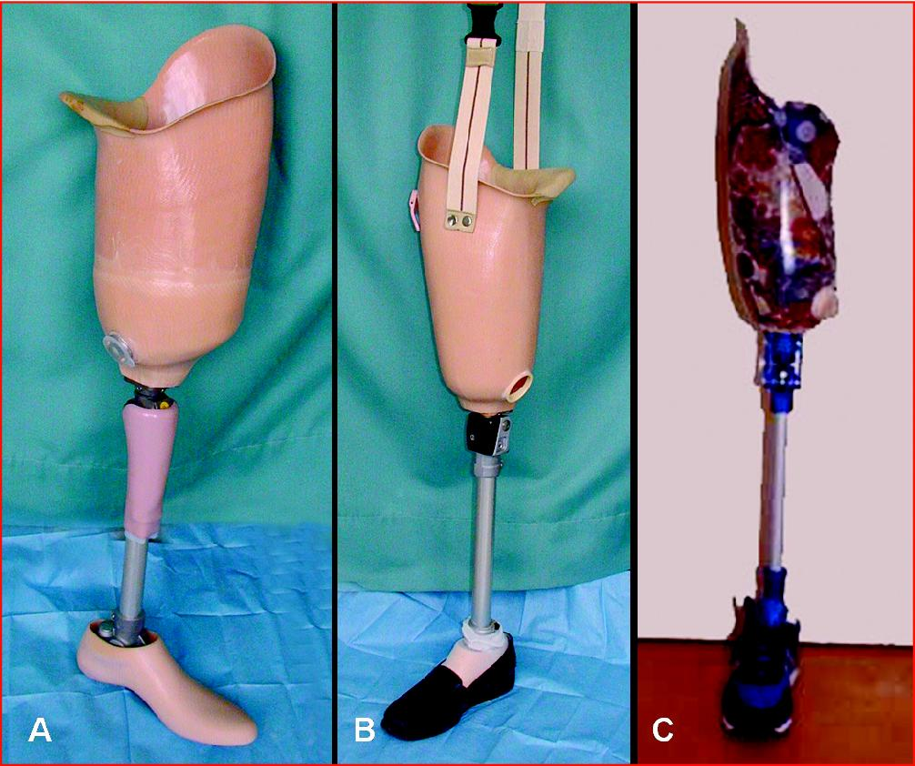 lower limb amputation and prothesis A robotic lower limb prosthesis is an active device that replaces all or a part of the lower extremity it provides the amputee the opportunity to perform the design of the prosthesis is depend on the functional level of the amputee and it is geared toward comfort lower limb amputation is the most.