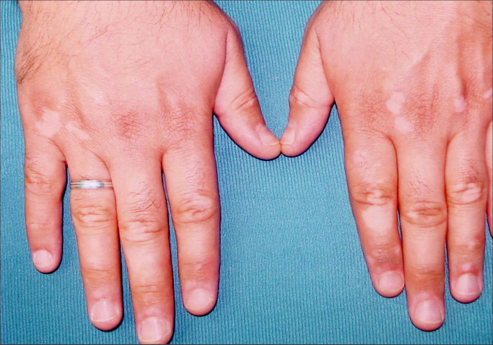 vitiligo treatment steroid cream