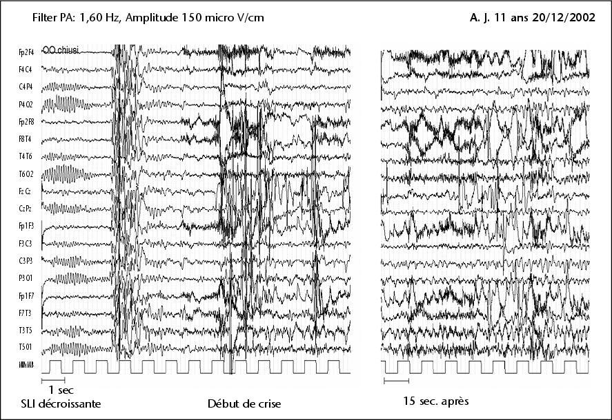 après crise epilepsie