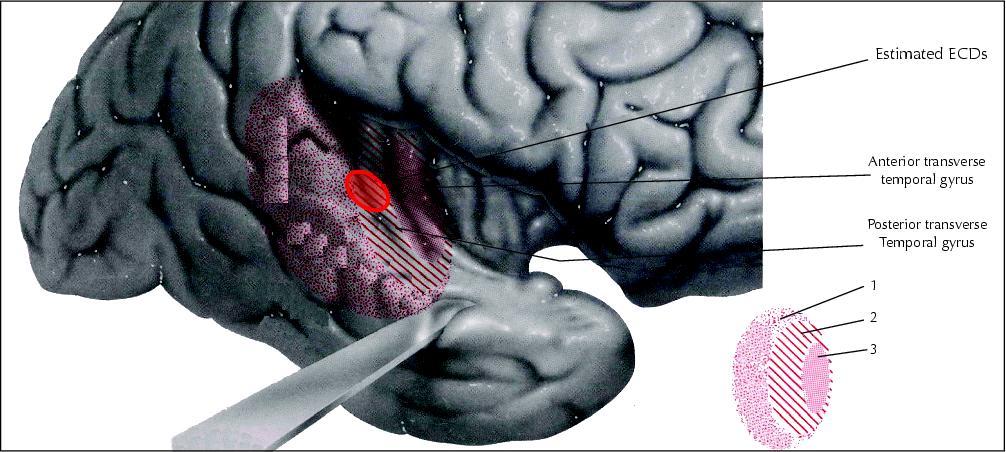 john libbey eurotext - epileptic disorders - the origin of the, Human Body