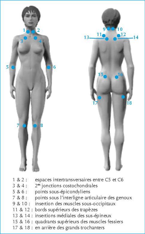 Populaire John Libbey Eurotext - Médecine thérapeutique - Fibromyalgie : de  VV42