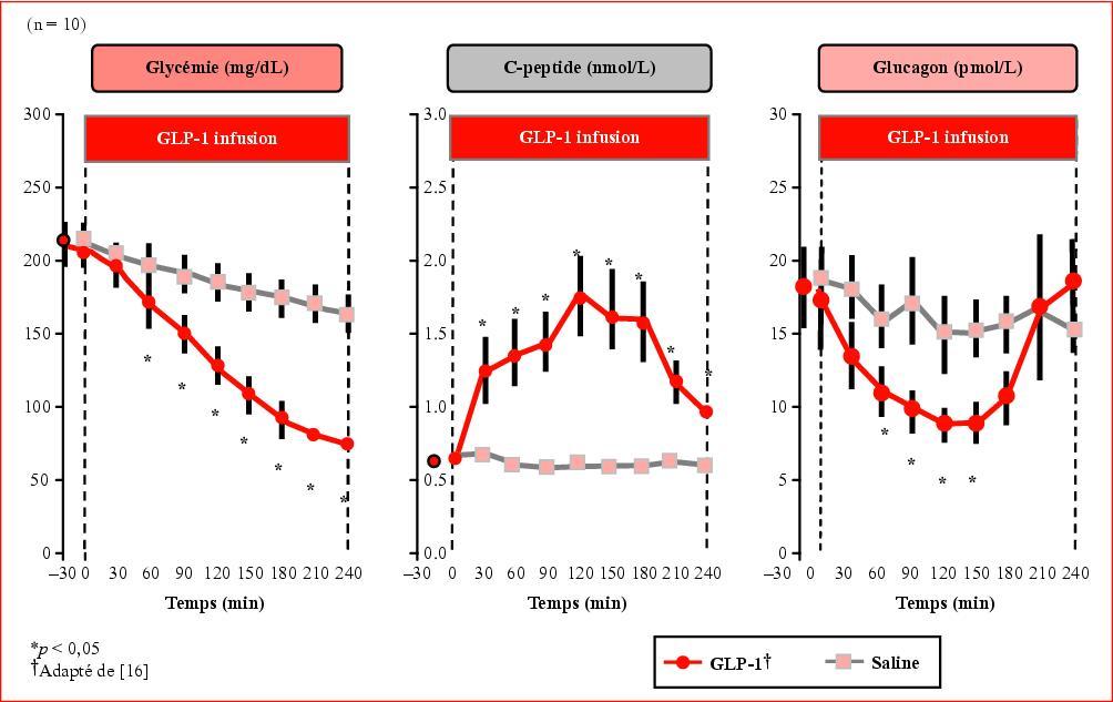 Perfusion glucose diabetique