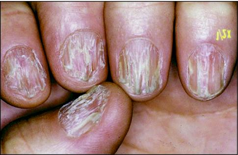 John Libbey Eurotext - European Journal of Dermatology - Nail lichen ...