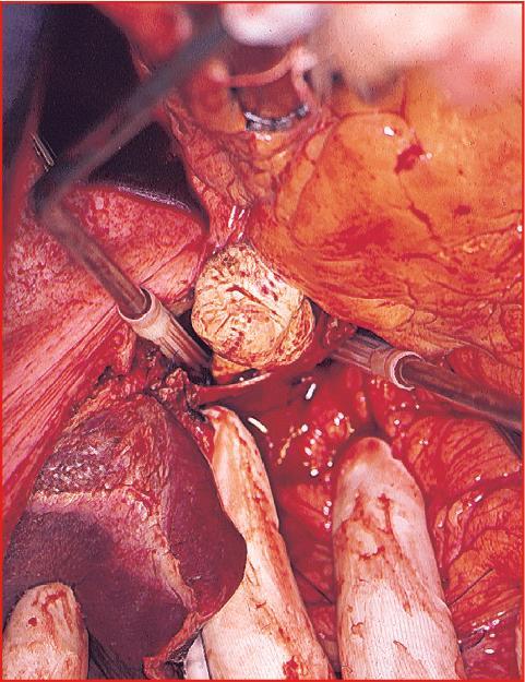 Thrombose de la veine cave