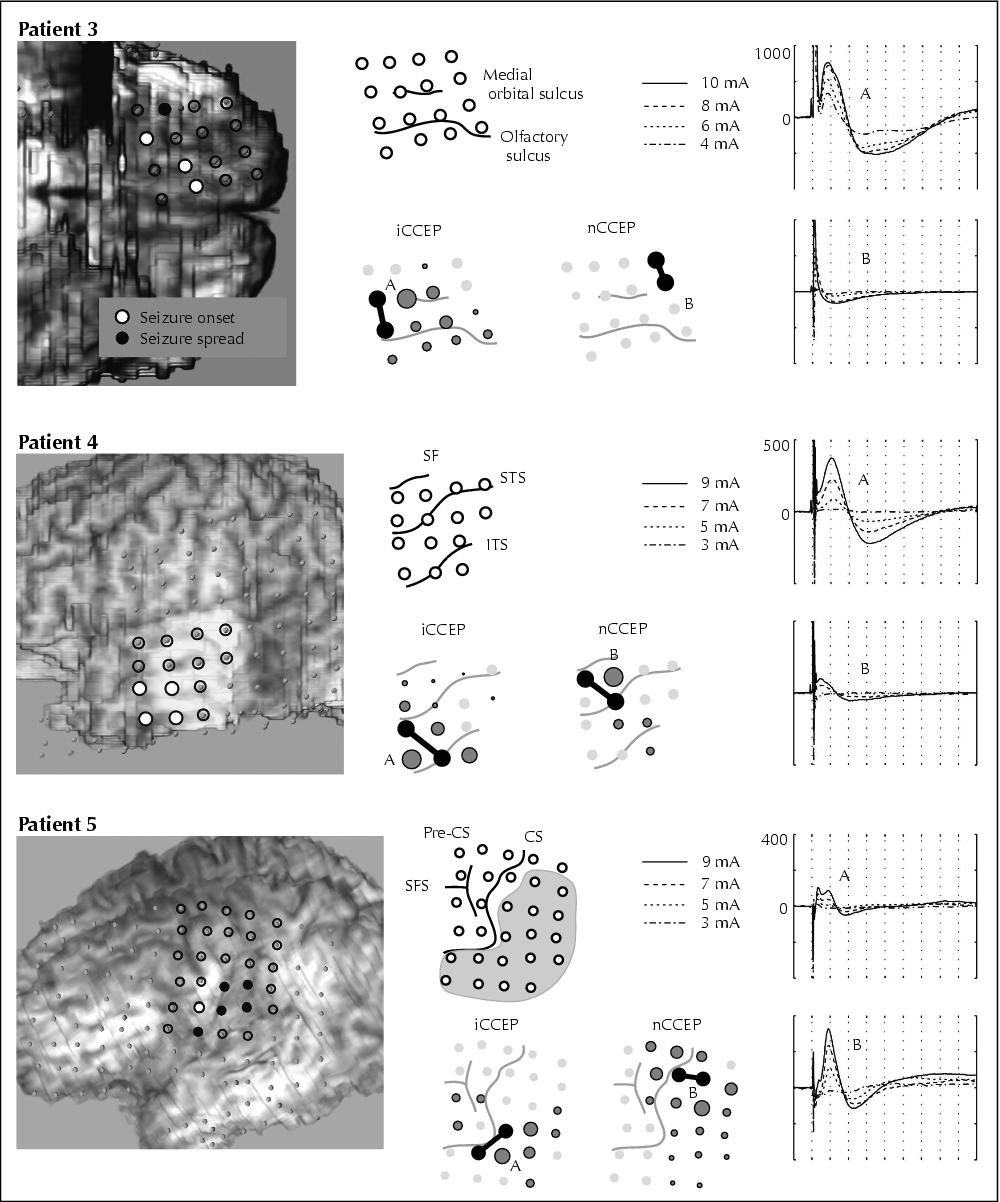 John Libbey Eurotext - Accentuated cortico-cortical evoked ...