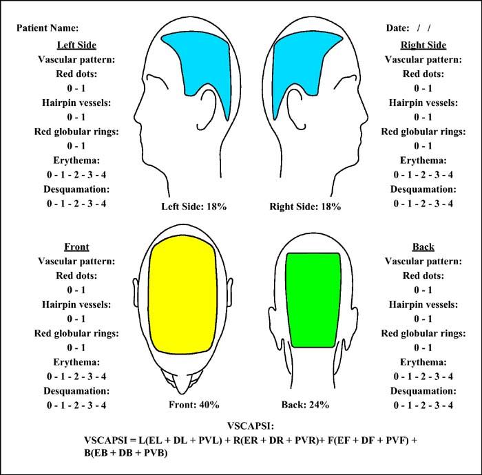 psoriasis scalp severity index calculator
