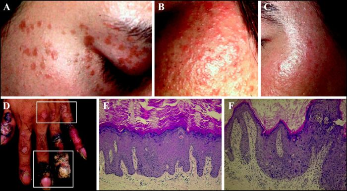 Human papillomavirus induced warts. New systemic treatments in HPV infection