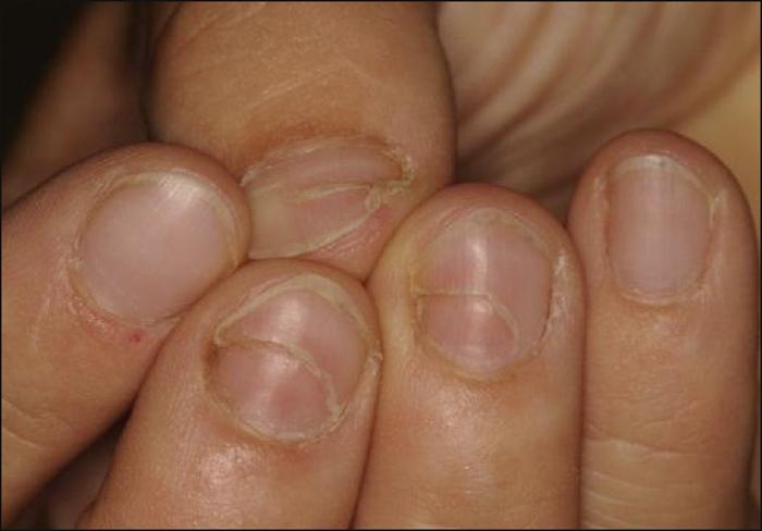 John Libbey Eurotext - European Journal of Dermatology - Nail it ...