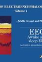 Atlas of electroencephalography - Volume 1 : Awake and sleep EEG. Activation procedures and artifacts.