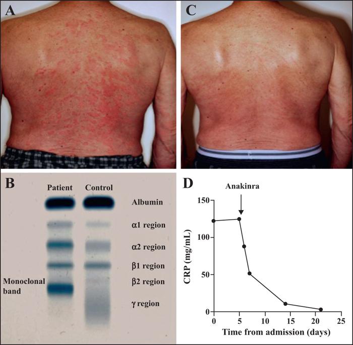 John Libbey Eurotext European Journal Of Dermatology