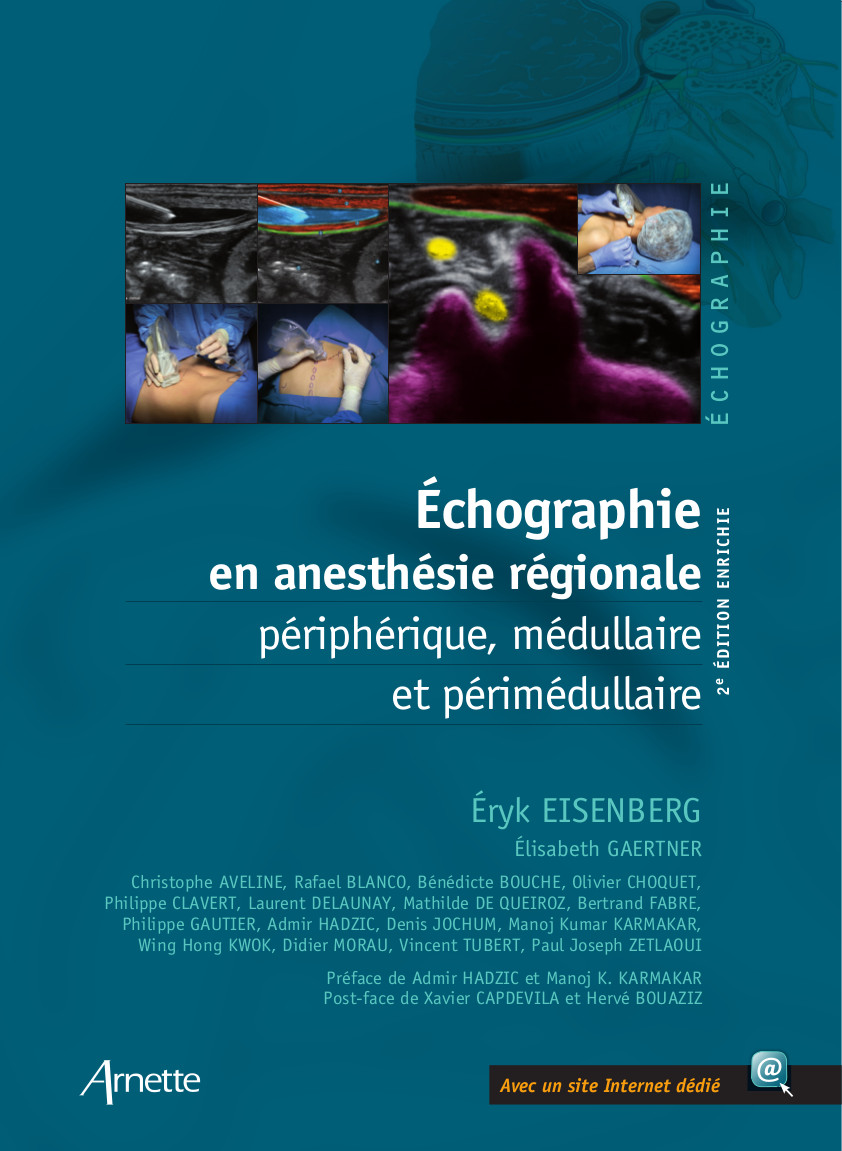 Ultrasound in regional anesthesia (2nd edition)