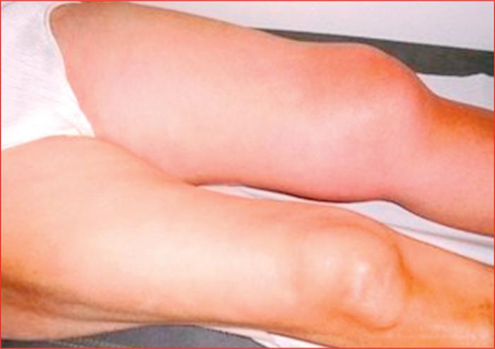 stents et flebite