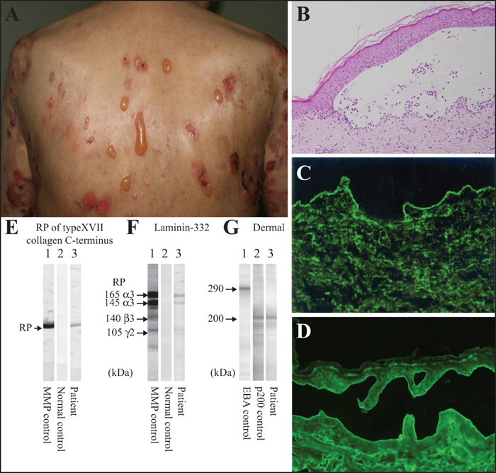 Evidence-based (S3) guidelines for the treatment of psoriasis vulgaris 2