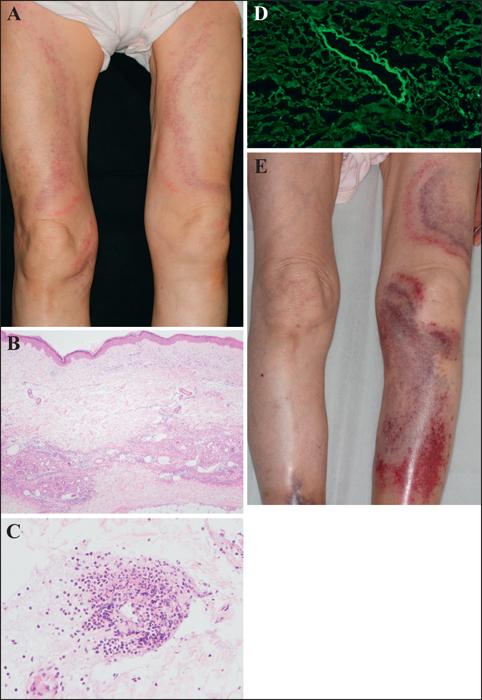John Libbey Eurotext - European Journal of Dermatology - Annular