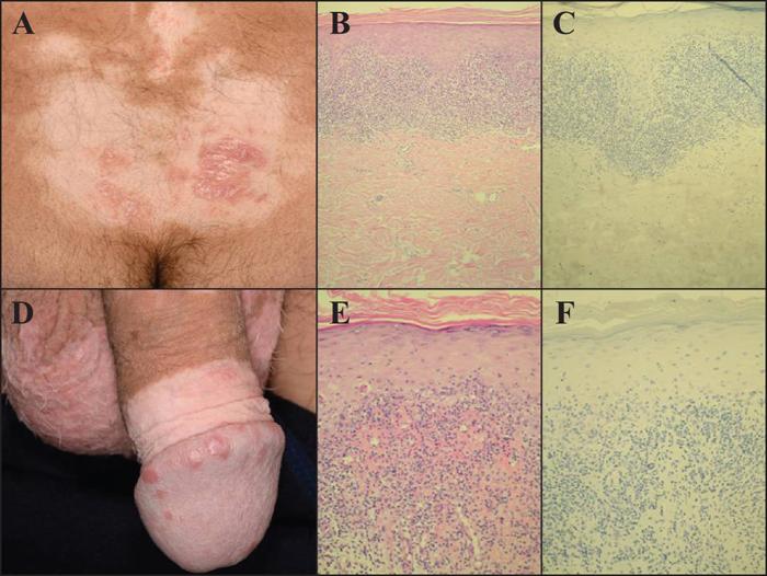 vitiligo în penis)