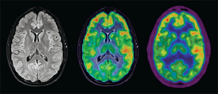 John Libbey Eurotext Epileptic Disorders A Case Of Anti Nmda