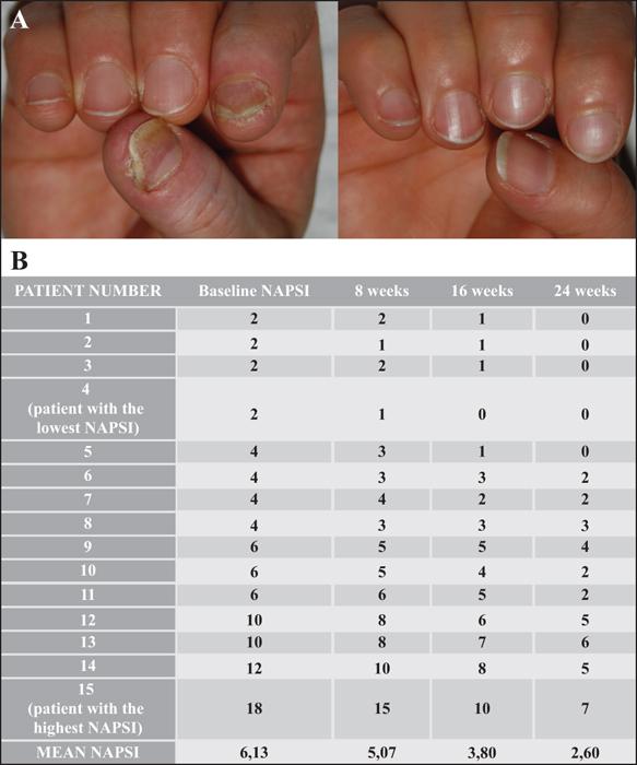 Stawiski marek dr-psoriasis / ekcéma kezelés cntr