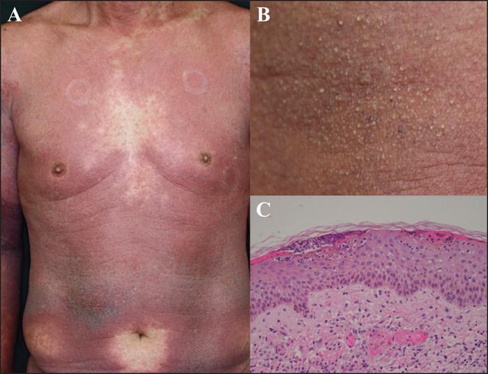 mycoplasma pneumoniae traitement