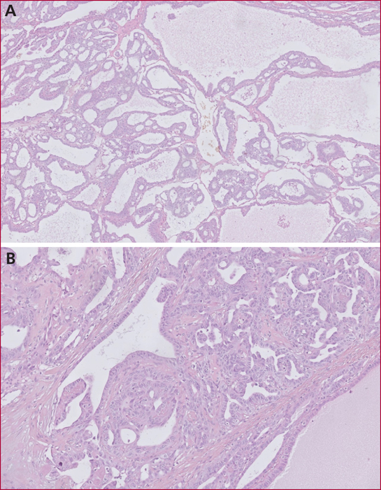 polypose glandulo kystique fundique