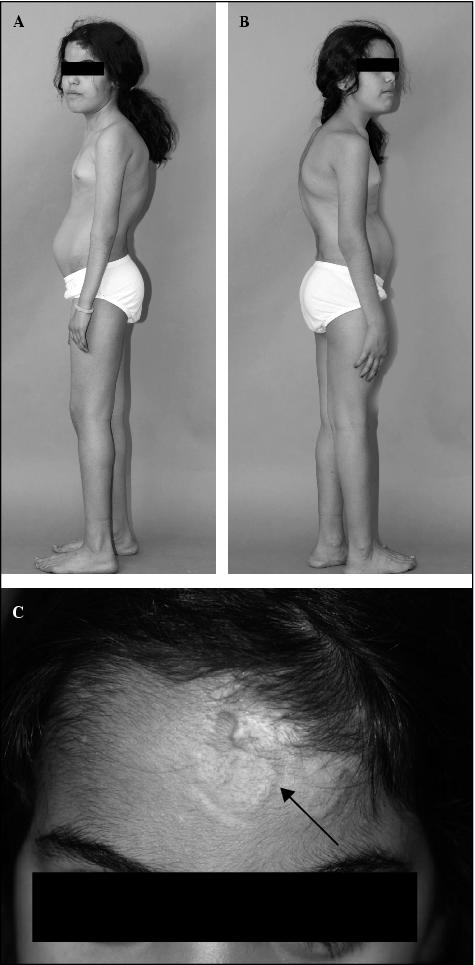 An Ehlers-Danlos syndrome type VIA patient with cystic malformations ...