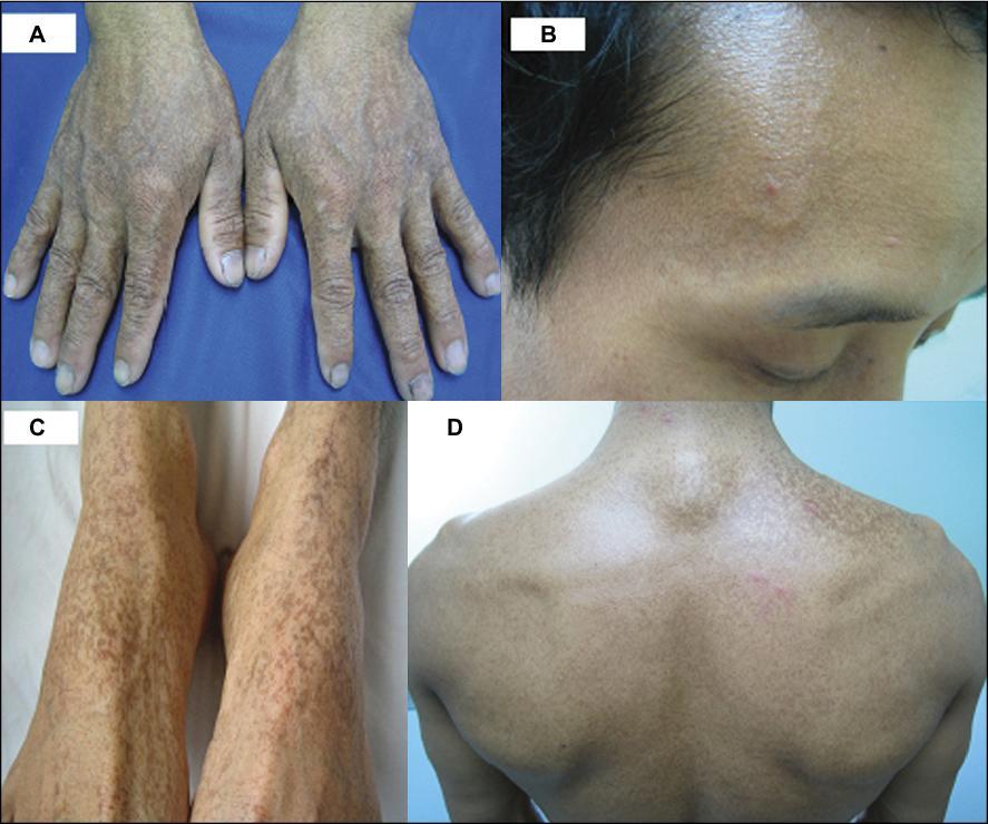 how to fix skin pigmentation