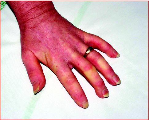 Leczéma les maladies allergiques de la peau