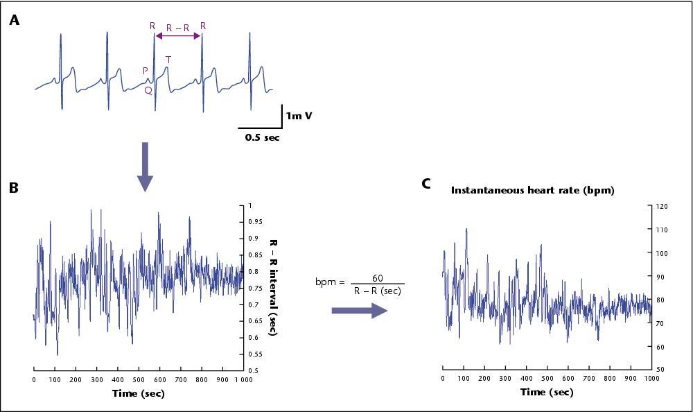 John Libbey Eurotext - Epilepsies - Heart rate variability