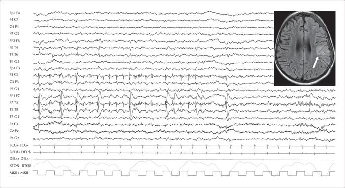 John libbey eurotext epileptic disorders idiopathic focal figure 1 fandeluxe Images