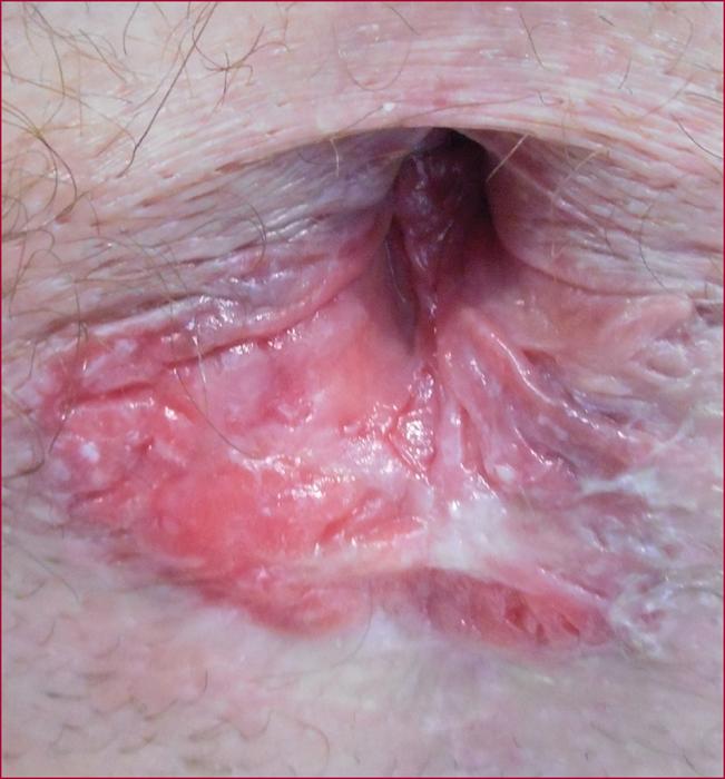 Bumps inside anus — img 10