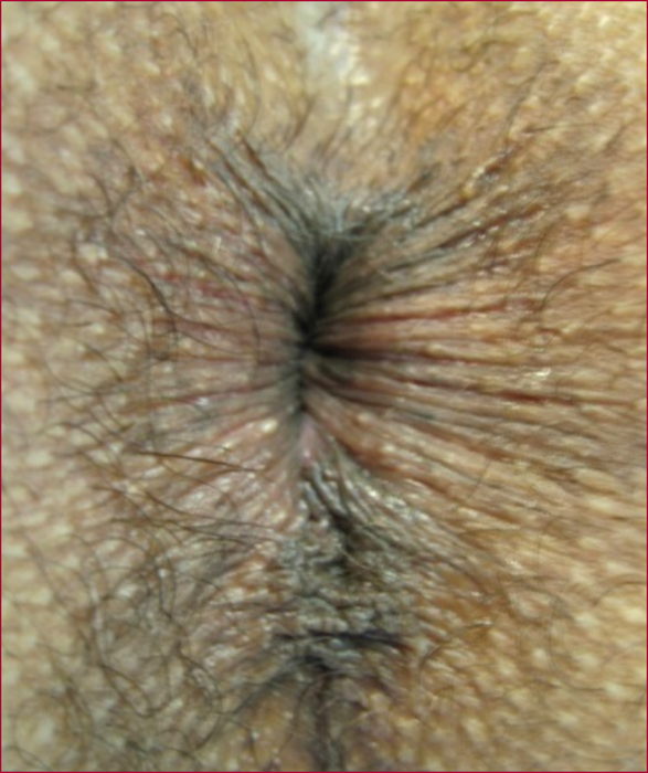 perforated-anus-tethered-cord